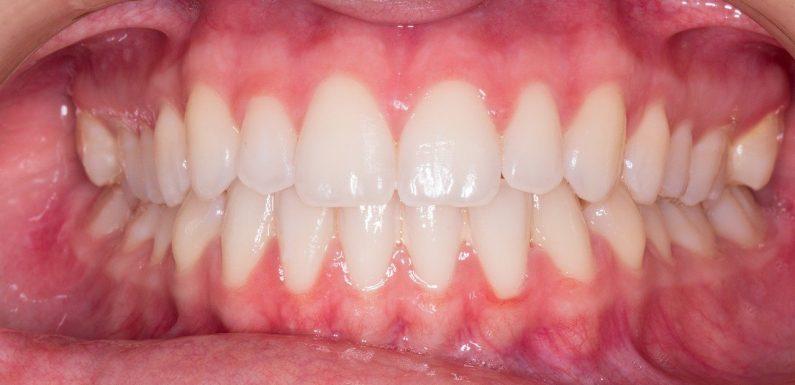 Przebarwienia na zębach – co warto wiedzieć?