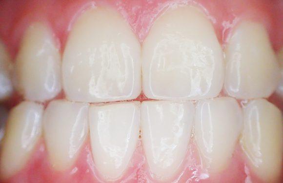 Częste wizyty u dentysty są potrzebne